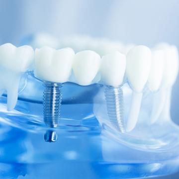 Dental Implant $1500